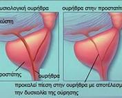 prostatitida300